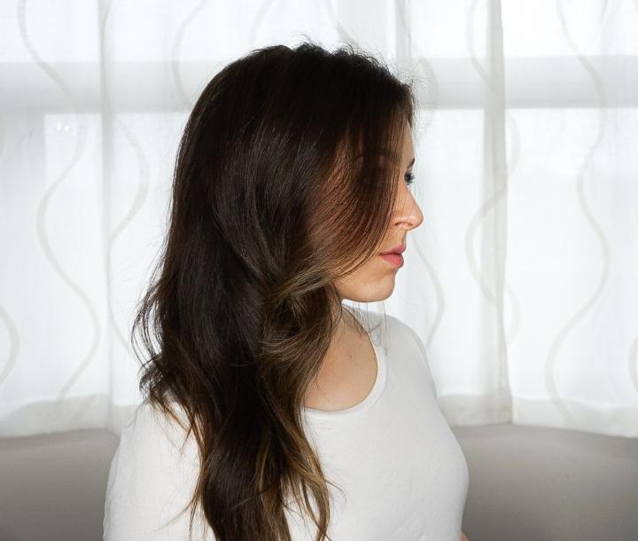 Managing Postpartum HairLoss